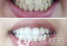 上海圣贝口腔炫彩激光美白30分钟让我变身唇红齿白小仙女