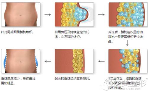 酷塑冷冻溶脂的操作流程