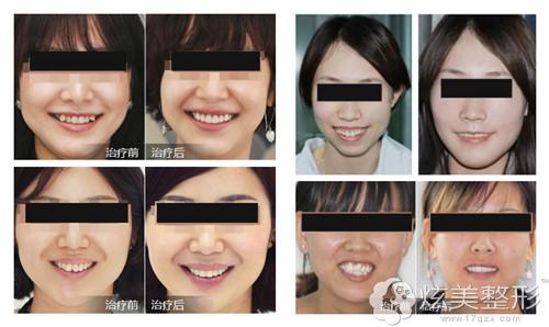 经过牙齿矫正后脸型都变得好看了