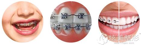 普通金属托槽牙齿矫正