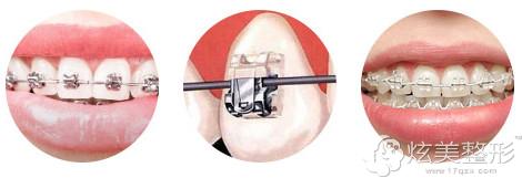 半透明托槽矫正牙齿