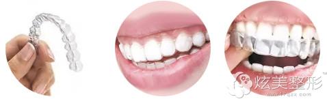 无托槽隐形矫正牙齿