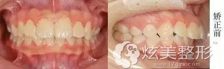 牙齿矫正案例:学生龅牙妹上海万众口腔正畸之路成就齐牙V脸