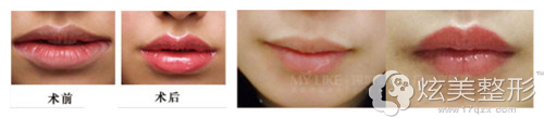 美莱整形纹唇前后对比