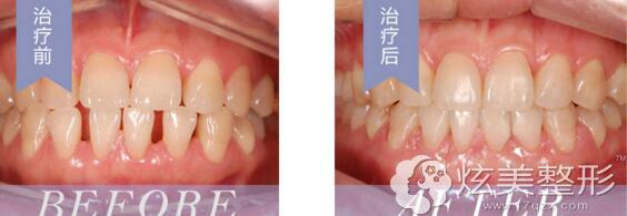 李庆云专家牙齿矫正经典案例分享