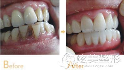 李功勋专家牙齿矫正经典案例分享