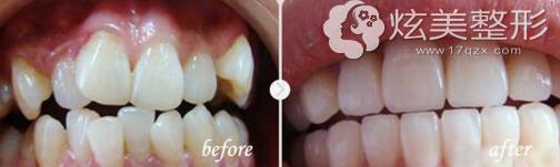 王博专家矫正牙齿真实案例分享