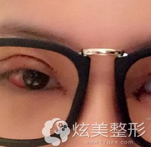 刚做完手术案例图上海光博士双眼皮