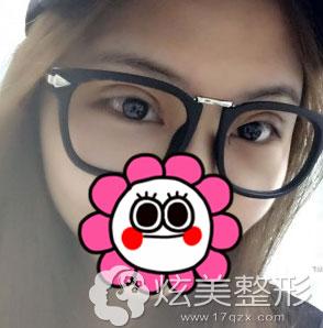 上海光博士一周效果图双眼皮手术
