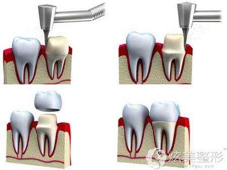 武汉华美整形仿生冠美牙技术原理