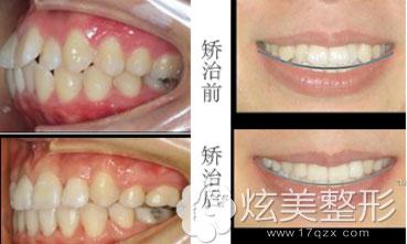 牙齿矫正案例上海拜博口腔
