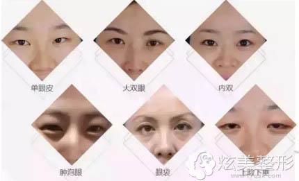 眼综合整形能够改善的眼部问题