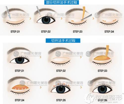 广州曙光微创双眼皮操作步骤