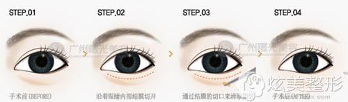 广州曙光激光祛眼袋的操作方法
