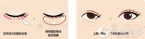 眼部整形关键是什么