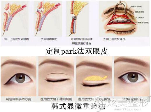 上海华美定制park法双眼皮和韩式显微重睑法都适合所有人群