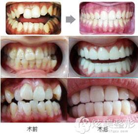 牙齿矫正案例深圳希思口腔