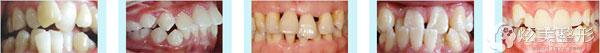 哪些牙齿畸形情况可以通过深圳希思隐形正畸改善
