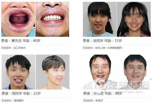 佛山拜博口腔牙齿整形案例