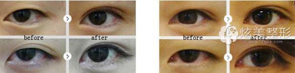 双眼皮案例李成龙专家昆明梦想整形
