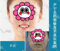 尹宁北专家唇裂修复手术案例