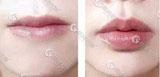 祁佐良专家唇部整形案例
