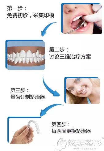 上海九院隐适美牙齿矫正流程