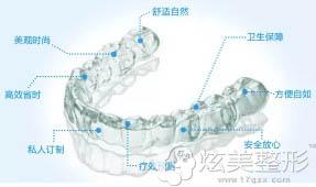隐适美矫正牙齿的5大优势