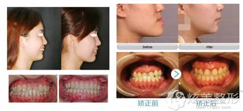 潘晓岗专家隐适美牙齿矫正真人案例