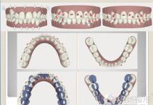 上海九院潘晓岗专家揭秘牙齿矫正用隐适美和传统牙套的区别