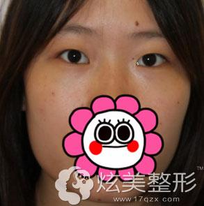 北京叶美人张伟专家双眼皮案例术前