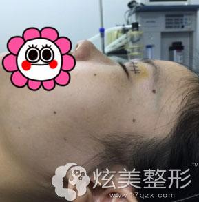 北京叶美人张伟专家设计划线眼睛