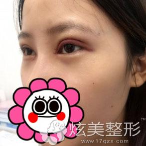 眼睛稍微肿胀北京叶美人双眼皮案例