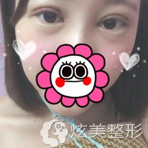 北京叶美人全切双眼皮案例术后3天效果