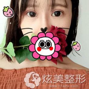 北京叶美人全切双眼皮案例术后一周效果