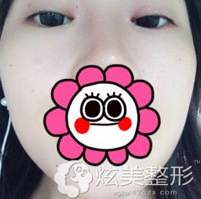 全切双眼皮案例术后1个月效果北京叶美人