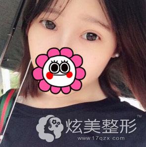 北京叶美人张伟专家全切双眼皮案例术后1个月效果