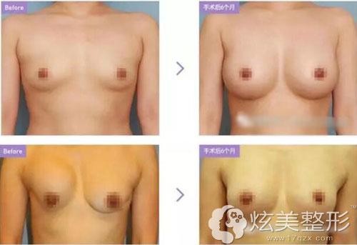 隆胸失败到韩国巴诺巴奇再手术修复