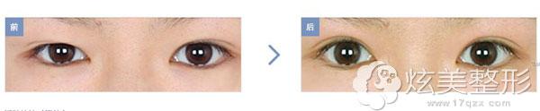 在韩国巴诺巴奇双眼皮再i手术案例