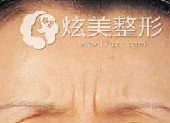 动态眉间纹效果图