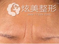 静态眉间纹效果图