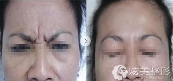 北京凯润婷整形祛除眉间纹真人案例