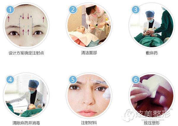 北京凯润婷整形医院注射祛眉间纹过程