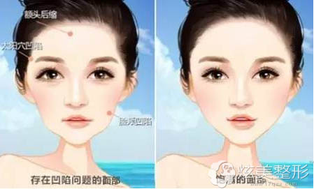 面部存在凹陷问题和饱满面部对比