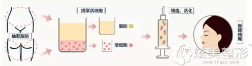 九江协和采用的自体脂肪面部精雕术原理
