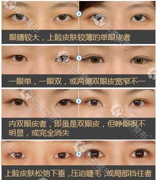丁梅丝专家眼部案例