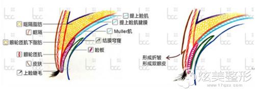 重庆联合利格整形采用仿生重睑术