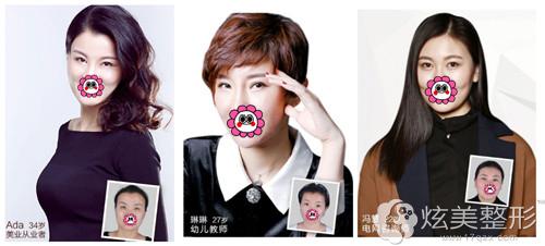 重庆联合利格整形双眼皮真人案例