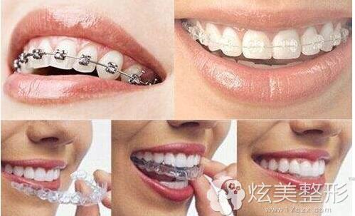 多种牙齿矫正材料的厦门登特口腔医院