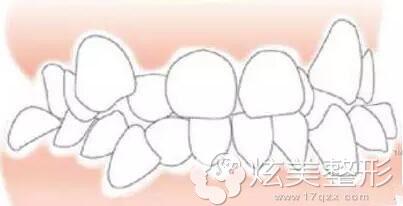 牙齿拥挤严重示意图四川娇点